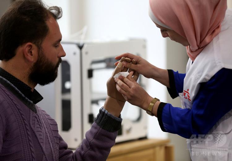 ヨルダン・イルビドに設置された国際医療支援団体「国境なき医師団」の3Dプリンター義肢クリニックで専門家の話を聴く患者(左、2018年2月6日撮影)。(c)AFP PHOTO / KHALIL MAZRAAWI