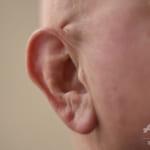 人体最小の中耳の骨を3Dプリンターで作製、世界初の移植成功 南ア