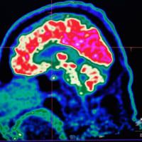 思考を音声に変換、脳内埋め込み型機器を開発 米研究