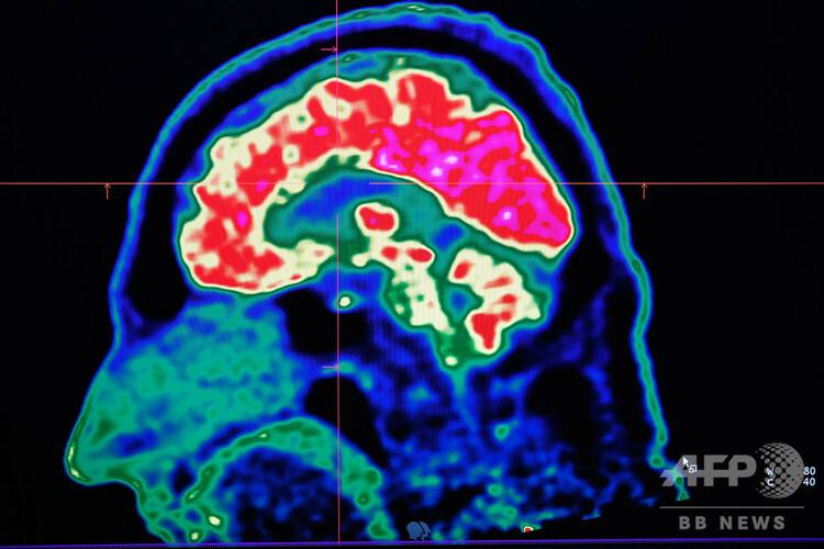PET(陽電子放射断層撮影)でスキャンされた人の脳(2019年1月9日撮影、資料写真)。(c)Fred TANNEAU / AFP