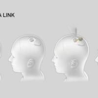 イーロン・マスク氏、脳とコンピューターつなぐ技術の成果発表 頭蓋骨にデバイス