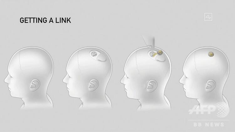 イーロン・マスク氏が立ち上げた「ニューラリンク」のデバイスを脳に埋め込む技術を示した図。同社のライブストリーミング配信映像より(2020年8月28日撮影)。(c)AFP PHOTO / NEURALINK