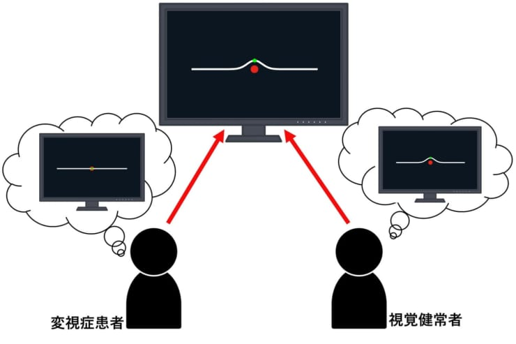 歪視の症状を可視化するための検査手法 (画像提供:茅研究室)