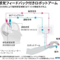 脳制御型ロボットアームに触覚を追加、機能性2倍に 米研究