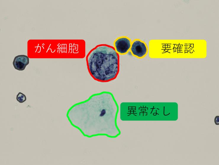 Cyto-AiSCANの画面。顕微鏡の視野に映る細胞のうち、がん細胞を病理医と同じ観点で識別する(ブレイン社提供)