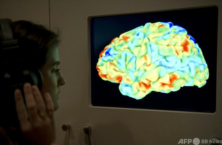 スクリーンに表示された脳の画像(2012年3月27日撮影、資料写真)。(c)MIGUEL MEDINA : AFP